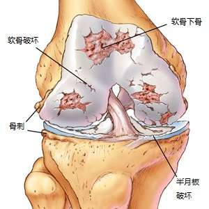 Knee OA Chinese
