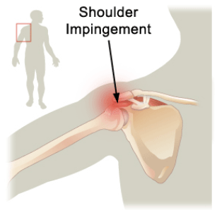 Shoulder Impingement Syndrome - Treatment & Symptoms
