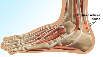 achilles-tendon-rupture-inner-image