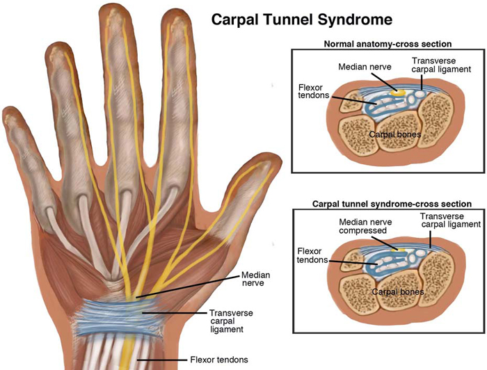 Carpal Tunnel Syndrome Treatment, Symptoms & Causes