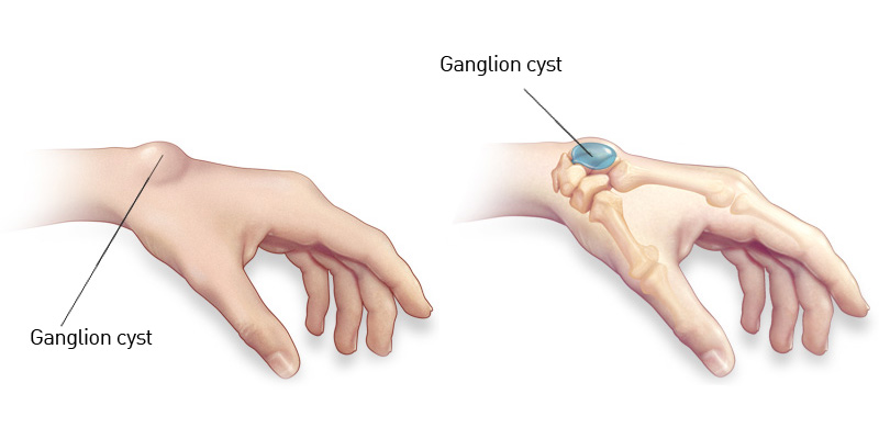 ganglion-cyst1