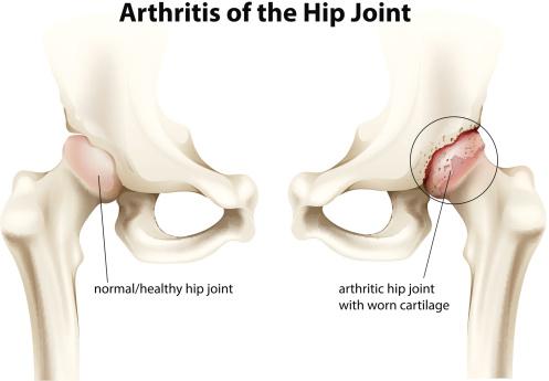 Hip Osteoarthritis: Hip Pain Causes, Symptoms & Treatment