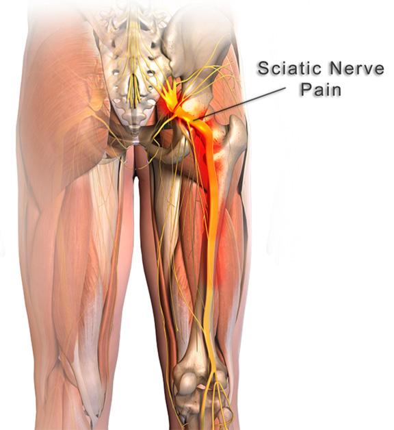 arthritis knee injections steroid