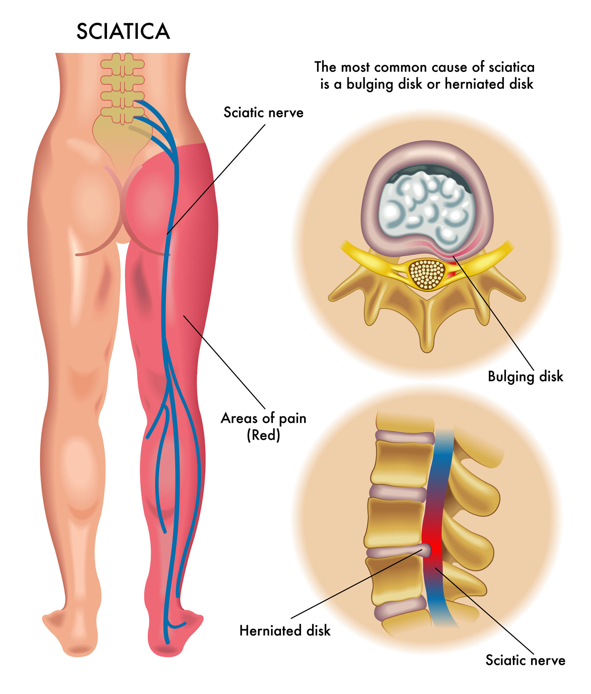 Sciatica Pain - Hip Pain Causes, Symptoms & Treatment