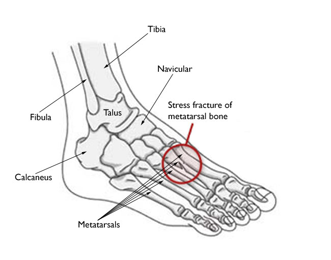 stress-fracture-foot